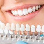 Best Cosmetic Dentist in Delhi