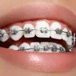 Teeth Braces Cost in Pune