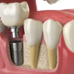 tooth implant cost in thane