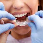 Orthodontist in Mysore