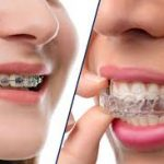 best orthodontist in coimbatore