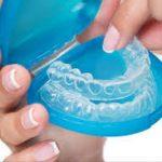 Best Orthodontist in Dehradun