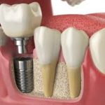 dental implant noida