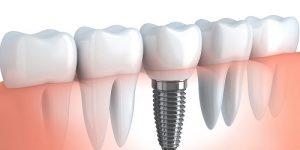 Dental Implants gandhinagar